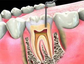Endodontic Therapy